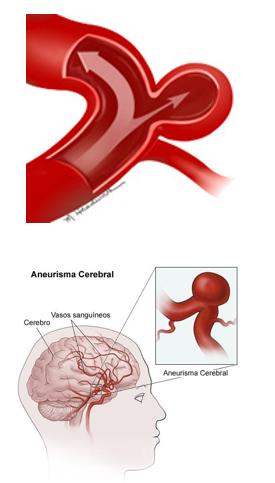 aneurisma-cerebral