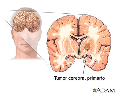 Tumor primario