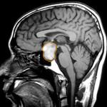 tumor pituitario