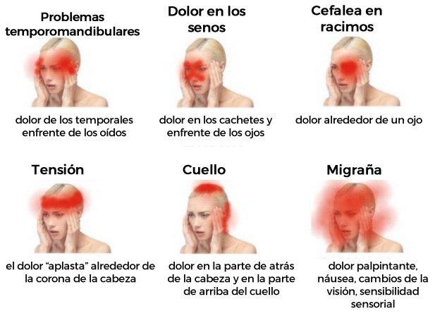 Dolor de cabeza leve en la parte superior de la cabeza